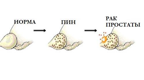Простатическая интраэпителиальная неоплазия (ПИН)