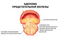 Аденома простаты как причина преждевременной эакуляции