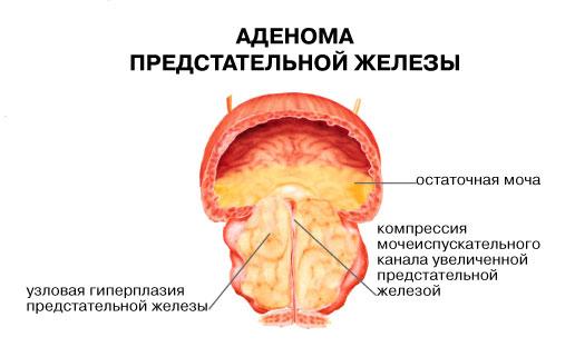 Чем снять воспаление предстательной железы у мужчин