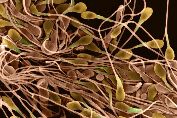 Переизбыток сперматозоидов