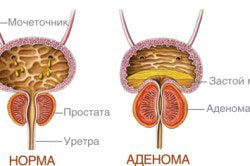 Сравнение здоровой простаты и аденомы