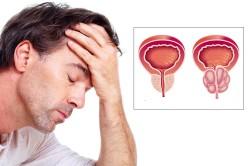 Опухоль в органах мочеполовой системы