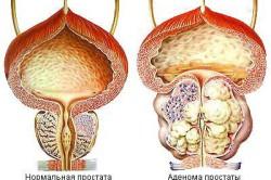Устройство мочеполовой системы у мужчин