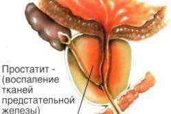 Воспаление тканей предстательной железы