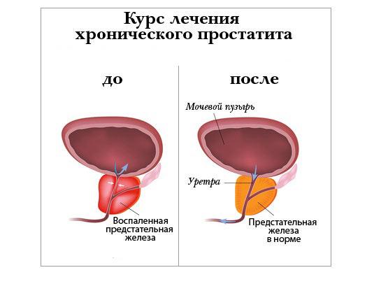 Симптом простатита боль в яичках