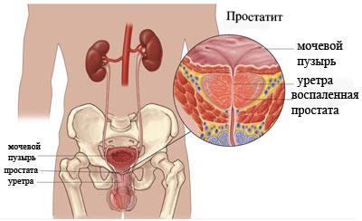 Схема лечения хронического простатита - Простатит
