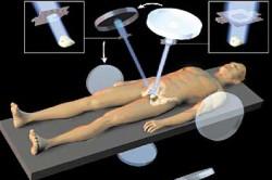 Радиоактивное излучение при раке простаты