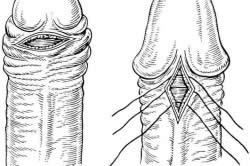Операция на половом члене