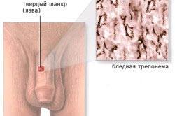 Начальный этап сифилиса