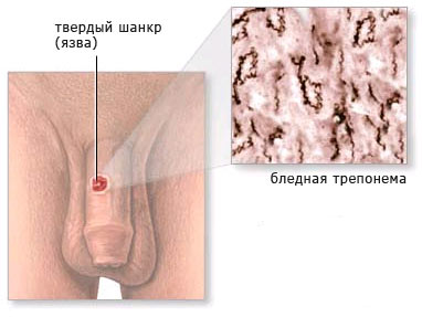 Болячка под кожей член