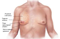 Грудь при  гинекомастити