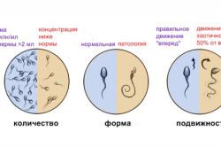 Оценка сперматозоидов