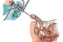 УЗИ и уретроскопия