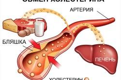 Повышение холестерина от сметаны