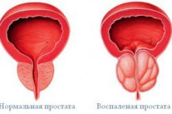 Кровавые комочки в сперме могут появиться из-за воспаления простаты