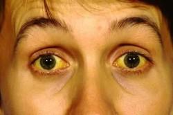 Снижение скорости опускания эритроцитов как следствие гепатита