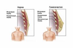 Грудные железы у мужчин (норма и гинекомастия)