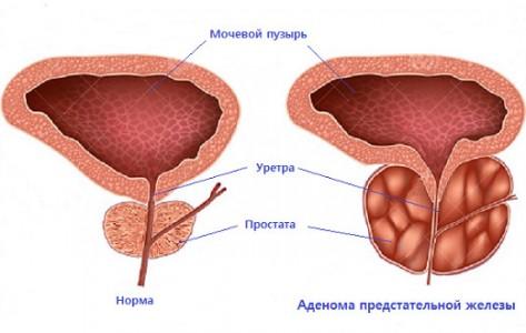 Медный купорос лечение простатита