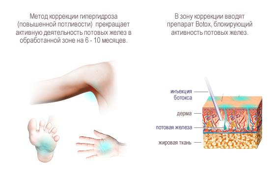 Лечение гипергидроза противопоказания