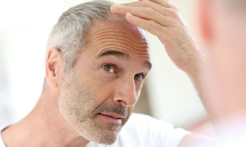 Появление седых волос
