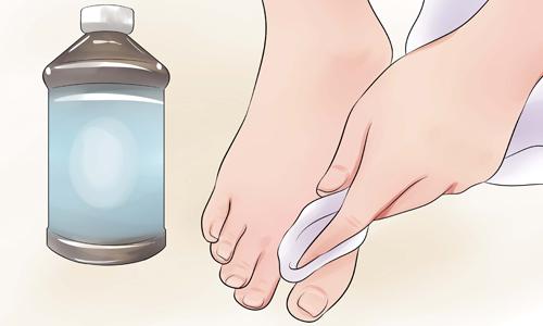 Протирание ноги перекисью