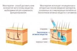 Схема мезотерапии