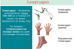 Виды гипергидроза