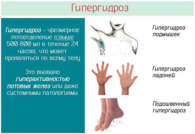 Гипергидроз народная медицина пайпель биопсия после гистероскопии