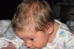 Потливость головы у детей