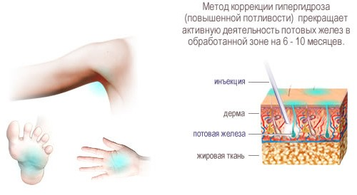 Схема инъекции