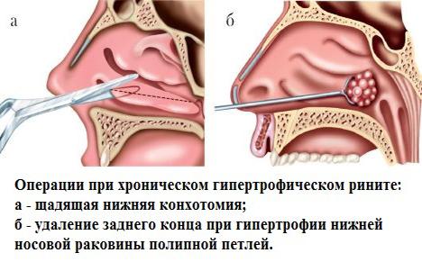 Лечение храпа хирургическим путем