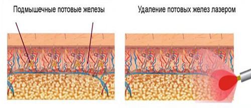 Схема удаления потовых желез
