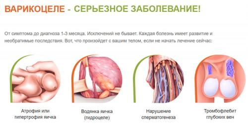Опасность варикоцеле