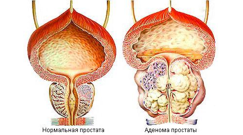 Нормальная простата и аденома простаты.