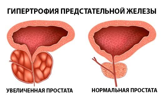 Гипертрофия простаты
