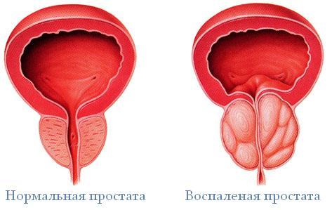 Признаки простатита острой бактериальной формы