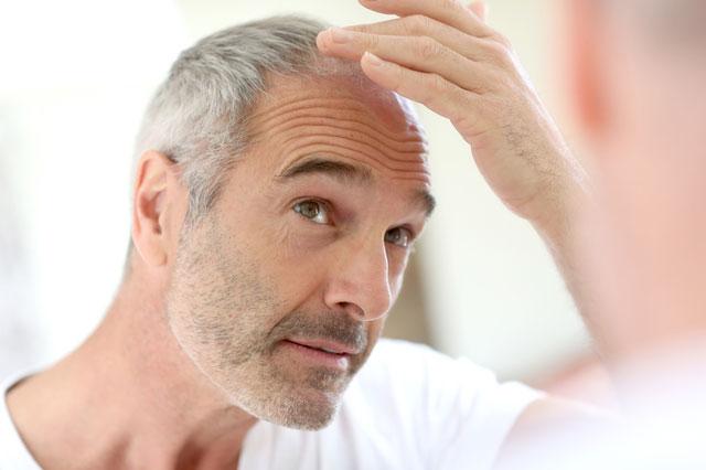 Остановите выпадение волос thumbnail