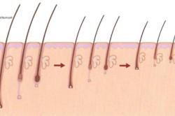 alopecij.