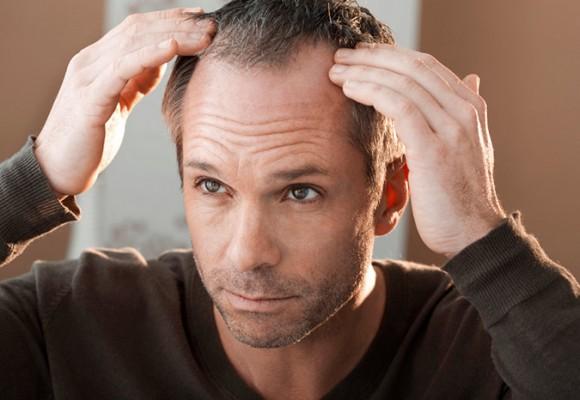 Почему стали выпадать волосы