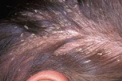 Ужасно выпадают волосы что делать