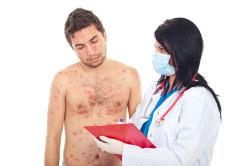 Болезнь сифилис