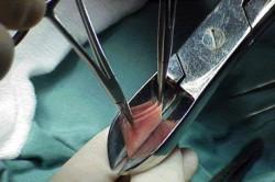Процедура обрезания