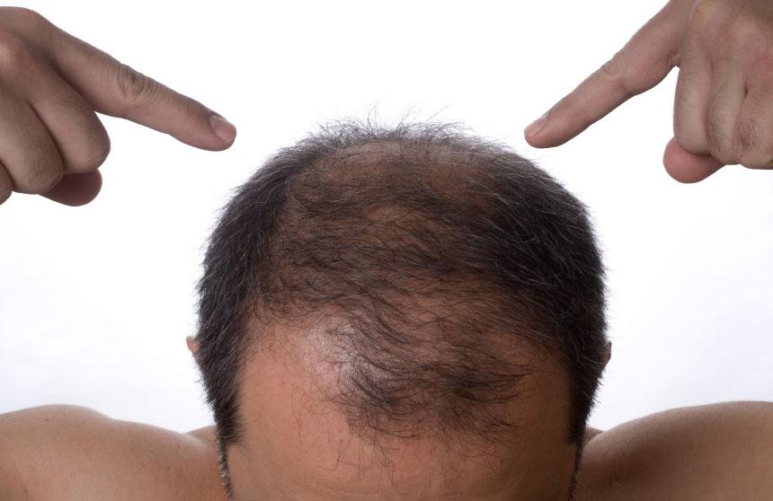 Волосы должны выпадать каждый день