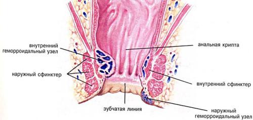 Лечение анальной трещины в домашних условиях народными средствами