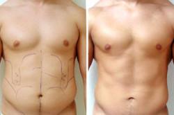 Липосакция спины и боков у мужчин