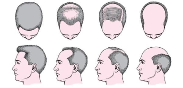 Что делать чтобы волосы росли на лысине