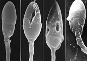 Здоровые и не жизнеспосбные сперматазоиды