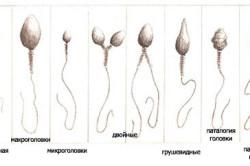 Виды сперматазоидов
