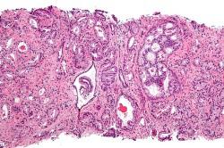 Рисунок 4. Изменение структуры клеток