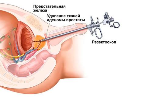 Простата упражнения мужчин